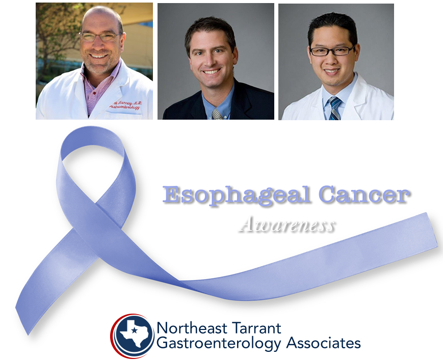 Esophageal Cancer Awareness Month Tarrant GI Doctors